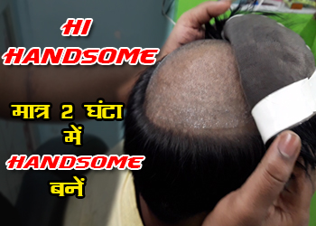 Hair replacement centre in Patna